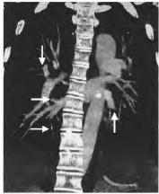 以癫痫发作首发的急性肺栓塞一例